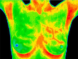 Breast Thermography versus Regulation Thermography